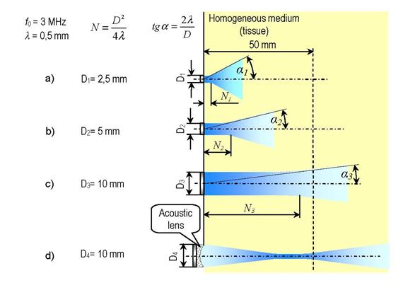 超声波探头的横向分辨力